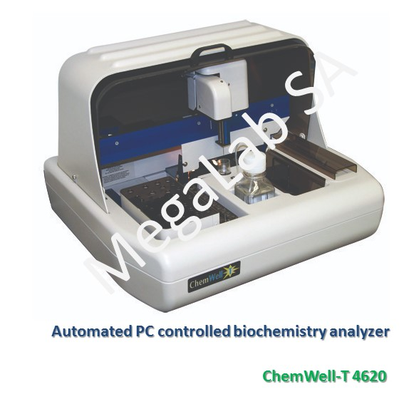 Automated PC controlled biochemistry analyzer